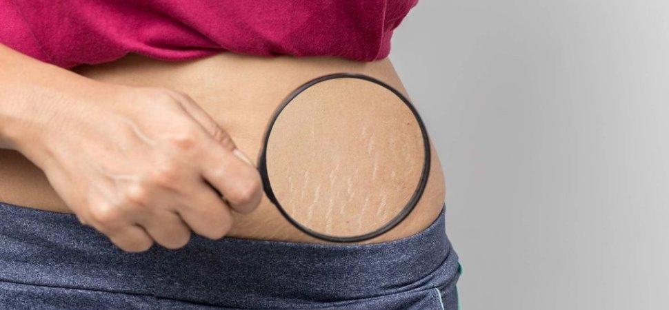 Mengurangi Tampilan Stretch Mark